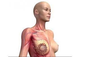 Рак молочной железы - продолжительность жизни