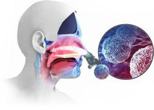 Рак носоглотки: причины и лечение