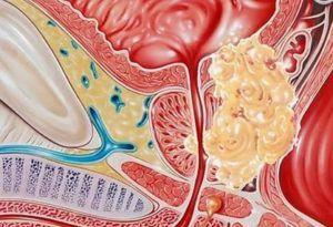 Рак простаты и операция