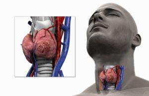 Рак щитовидной железы метастазы