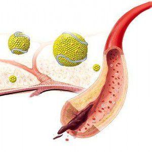 Нестенозирующий атеросклероз