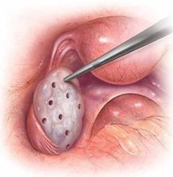 Фиброма яичника
