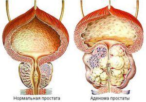 Аденома простаты у мужчин. Симптомы, лечение, препараты
