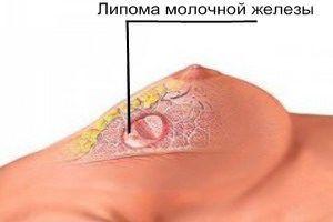Липома молочной железы, что это такое?