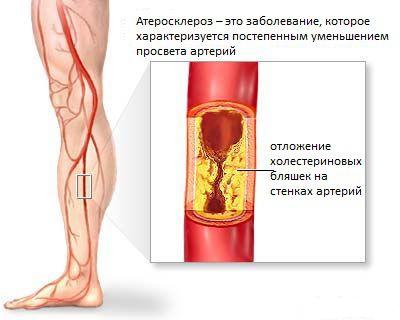 Солкосерил при атеросклерозе сосудов