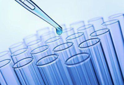 Антиген плоскоклеточной карциномы