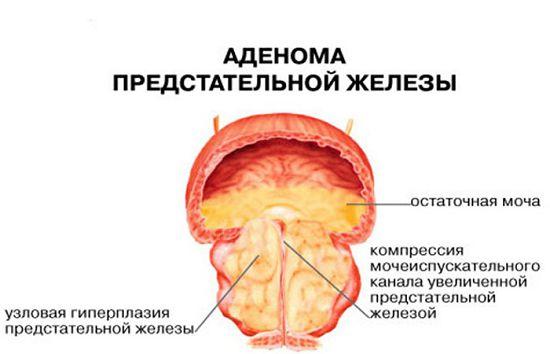 симптомы аденомы простаты у мужчин лекарства