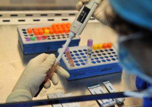 Анализ крови при раке желудка - показатели