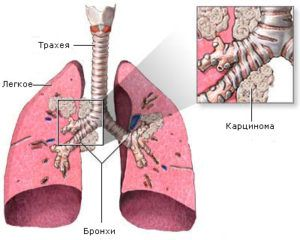 Доброкачественная опухоль в легких