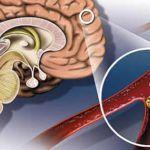 Атеросклероз сосудов головного мозга – симптомы и лечение