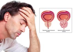 Аденома простаты у мужчин. Симптомы, лечение