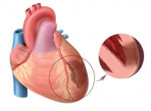 Что такое обширный инфаркт?