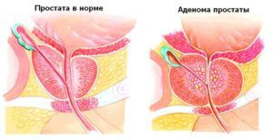 Лечение аденомы простаты у мужчин. Лекарства