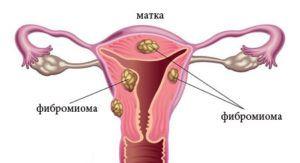 Фибромиома матки