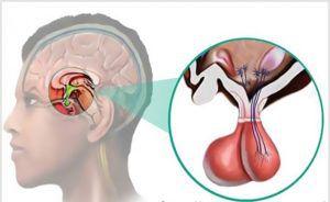 Аденома гипофиза: ранняя диагностика, симптомы, причины развития