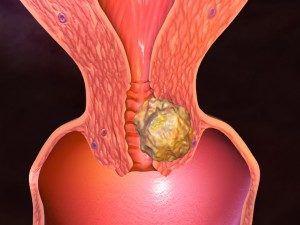 Аденокарцинома шейки матки