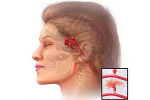 Атеросклероз сонных артерий: симптомы и лечение народными средствами