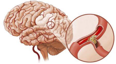 Атеросклероз сосудов головного мозга:симптомы, диета.