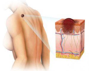 Доброкачественные новообразования кожи