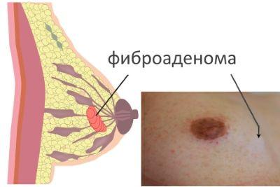 Нетрадиционные методы лечения при туберкулезе