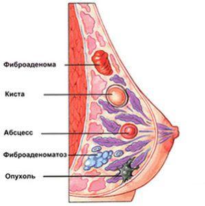 Доброкачественная опухоль молочной железы. Лечение