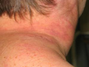 Крупноклеточная лимфома