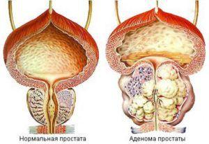 Аденома предстательной железы. Симптомы и лечение в домашних условиях