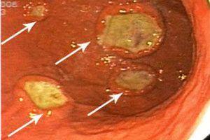 Мальт-лимфома желудка