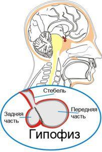 Микроаденома гипофиза и беременность