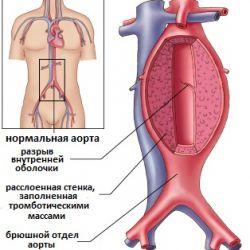 Атеросклероз брюшной аорты, что это такое