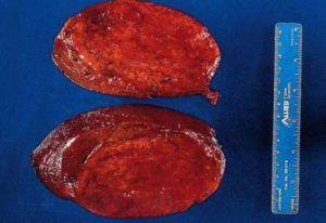 Доброкачественная опухоль печени