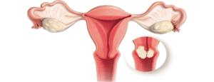 Анализ на рак шейки матки, как называется?