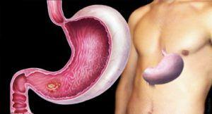 Доброкачественная опухоль желудка