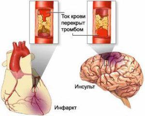 Атеросклероз сосудов головного мозга: симптомы, диета