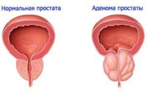 Рак аденомы простаты. Симптомы