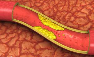 Атеросклероз сосудов полового члена