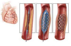 Операция при инфаркте