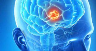 Глиома головного мозга – что это такое?