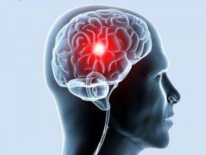 Ишемия головного мозга - лечение народными средствами