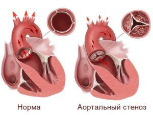 Стеноз аорты у новорожденных