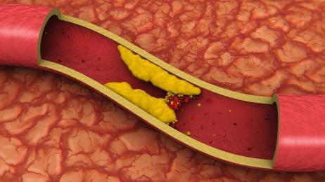 Стенозирующий атеросклероз