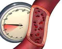Стадии артериальной гипертензии
