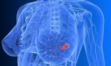Выживаемость при раке молочной железы