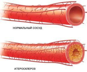 Атеросклероз нижних конечностей и банные процедуры