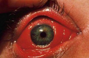 Хламидийная инфекция глаз