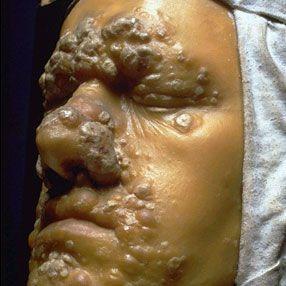 Третичный сифилис