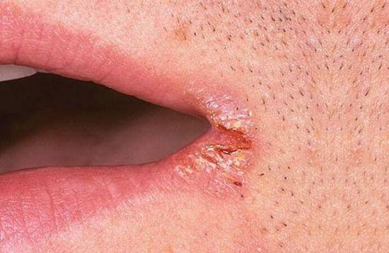 Сифилис первичный