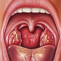 Гонорея горла