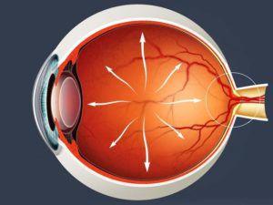 Низкое глазное давление