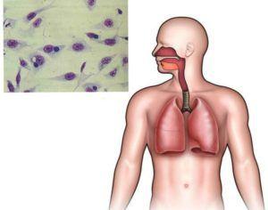 Респираторный хламидиоз